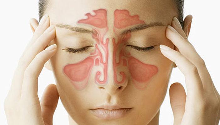 Soffri di sinusite? Scoprilo con 2 domande