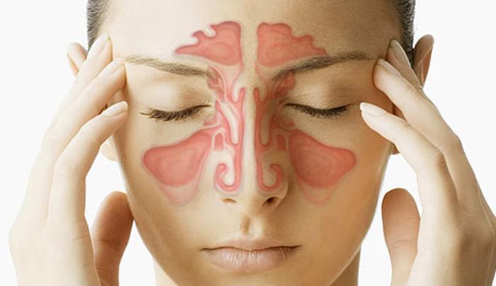 soffri-di-sinusite-scoprilo-con-2-domande